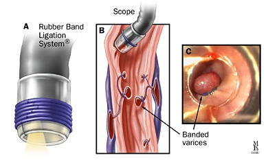 RBL_oesophageal_varices