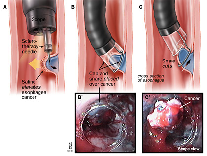 cap_assisted_resection